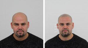 micro-haar-pigmentatie-voor-en-na