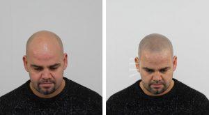 micro-haar-pigmentatie-voor-en-na_1