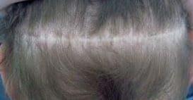 Micro haar pigmentatie litteken.