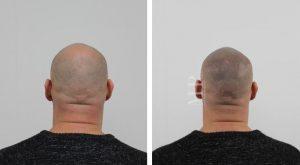 micro-haar-pigmentatie-voor-en-na_2