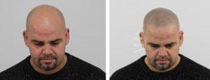 Tricopigmentatie.
