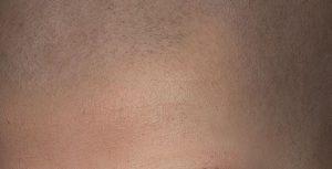 Hoe werkt micro haar pigmentatie?