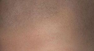Micro haar pigmentatie bij alopecia areata of alopecia.