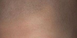 Micro haar pigmentatie bij haarziekte.