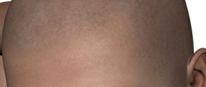 Micro haar pigmentatie pigmenten.