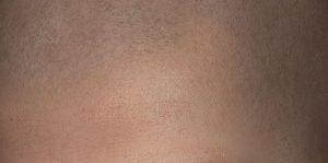 Micro haar pigmentatie recensie, review of beoordeling?