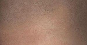 Micro haar pigmentatie risico's, problemen of complicaties?