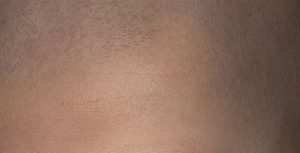 Micro haar pigmentatie shaven look of geschoren look?