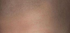 Micro haar pigmentatie voor haarverdikking of haarverdichting?