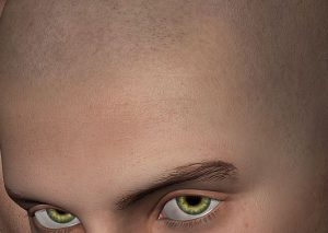 Micro haar pigmentatie weghalen, laseren of verwijderen?