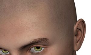 Micro haar pigmentatie wel of niet doen?