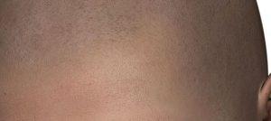 Micro haar pigmentatie aanvragen?
