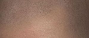 Micro haar pigmentatie startpagina.