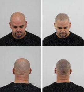 Micro hair pigmentation Nederland.