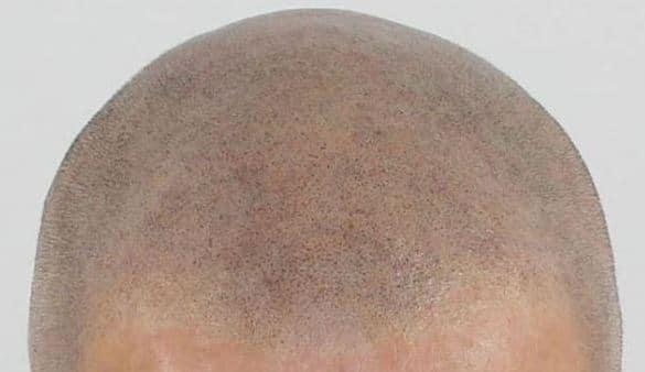 Micro haar pigmentatie behandeling in de zomer?