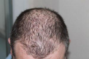 Erfelijke haaruitval?