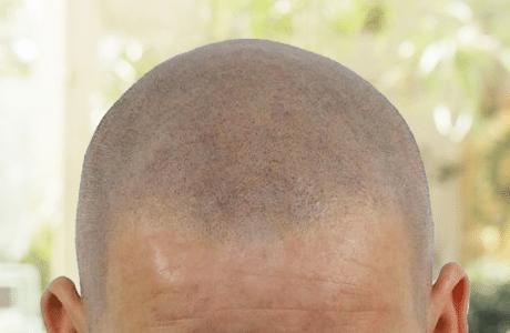 micro-haar-pigmentatie-behandeling