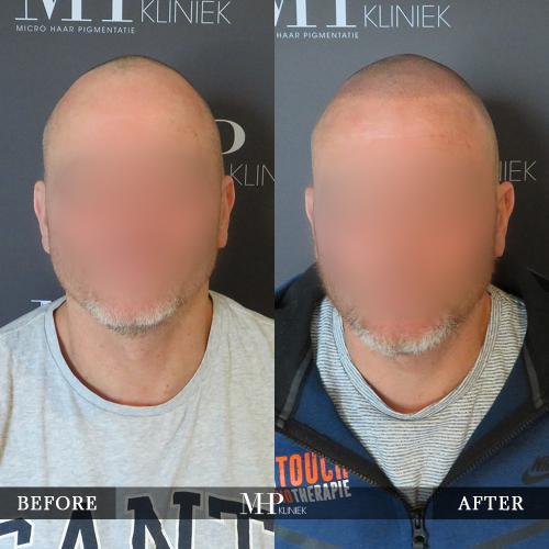 mhp-micro-haar-pigmentatie-v11