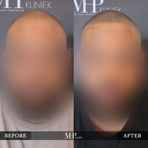 mhp-micro-haar-pigmentatie-v14