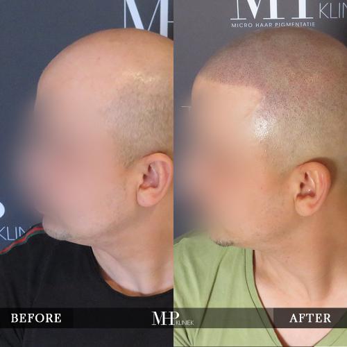 mhp-micro-haar-pigmentatie-v17