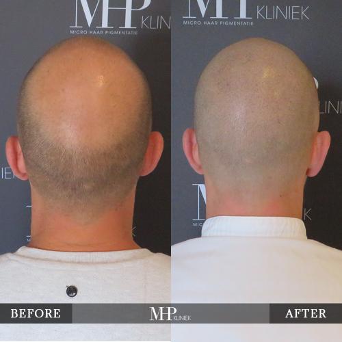 mhp-micro-haar-pigmentatie-v19