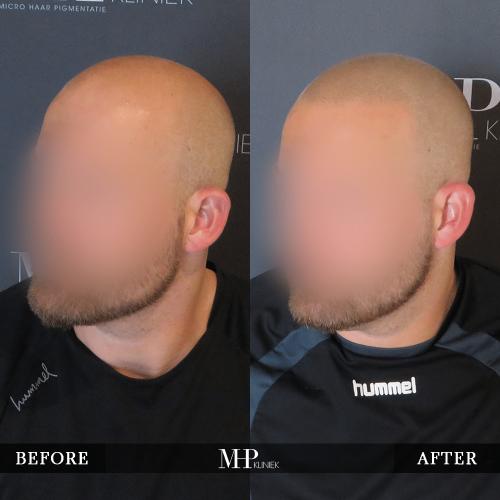 mhp-micro-haar-pigmentatie-v2