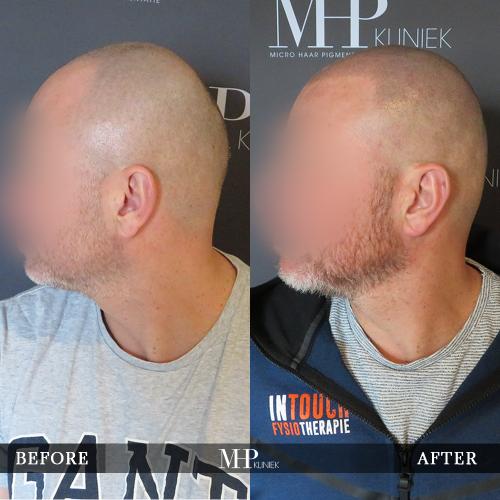 mhp-micro-haar-pigmentatie-v21