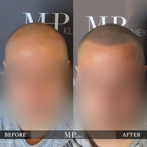 mhp-micro-haar-pigmentatie-v24