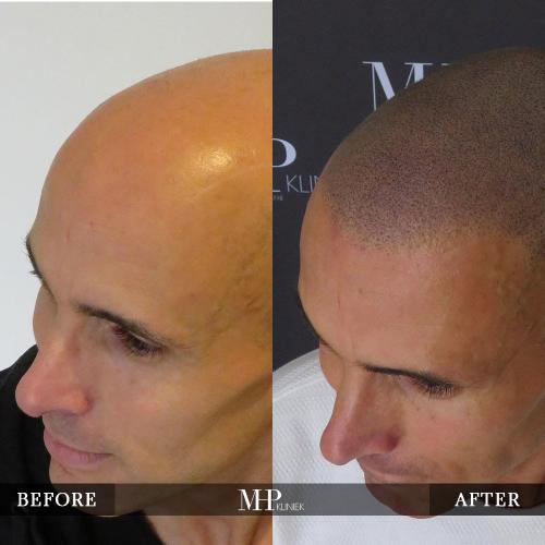 mhp-micro-haar-pigmentatie-v25