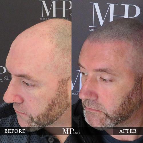 mhp-micro-haar-pigmentatie-v26