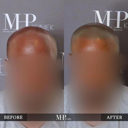 mhp-micro-haar-pigmentatie-v29