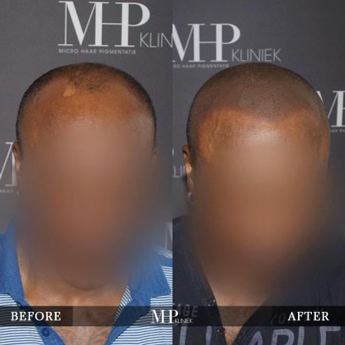 mhp-micro-haar-pigmentatie-v31