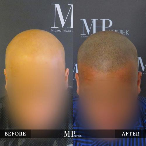 mhp-micro-haar-pigmentatie-v32