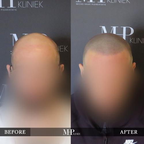mhp-micro-haar-pigmentatie-v34