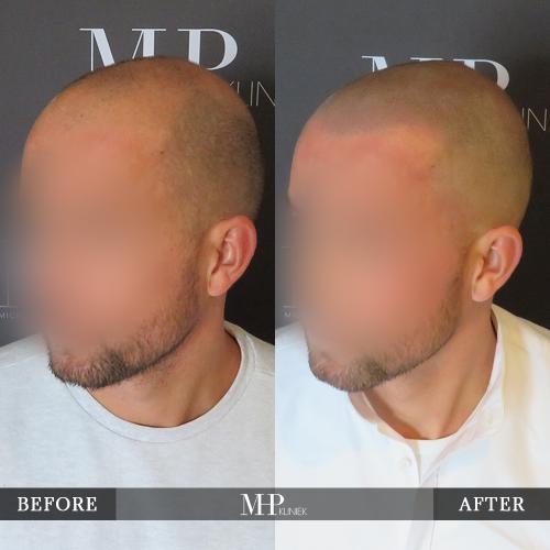 mhp-micro-haar-pigmentatie-v7