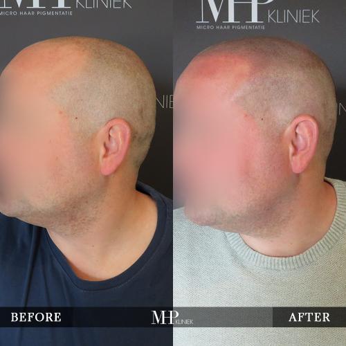 mhp-micro-haar-pigmentatie-v9