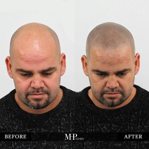 micro-haar-pigmentatie-11