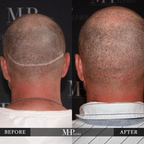 micro-haar-pigmentatie-13