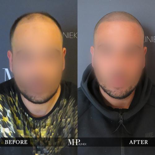 MHP-Micro-Haar-Pigmentatie-V1