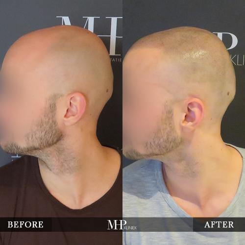 MHP-Micro-Haar-Pigmentatie-V10