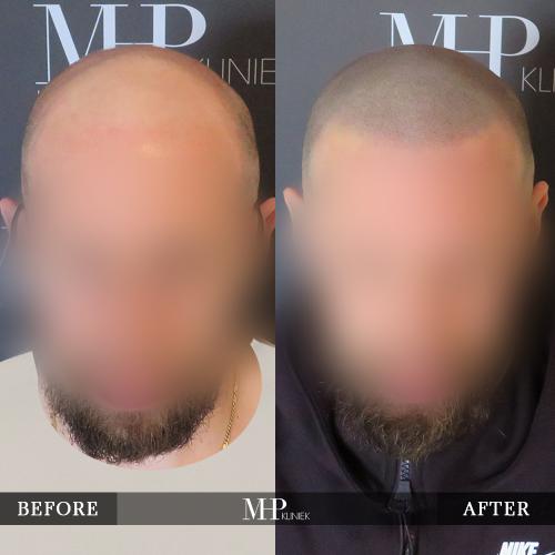 MHP-Micro-Haar-Pigmentatie-V12