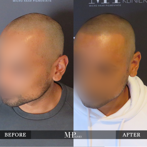 MHP-Micro-Haar-Pigmentatie-V13