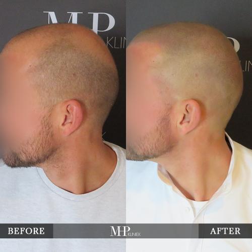 MHP-Micro-Haar-Pigmentatie-V18