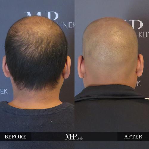MHP-Micro-Haar-Pigmentatie-V20