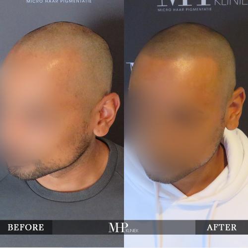 MHP-Micro-Haar-Pigmentatie-V22