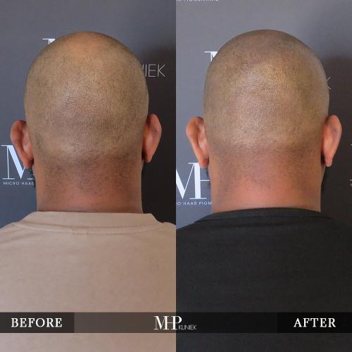 MHP-Micro-Haar-Pigmentatie-V23