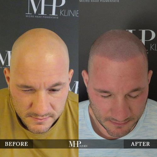 MHP-Micro-Haar-Pigmentatie-V28
