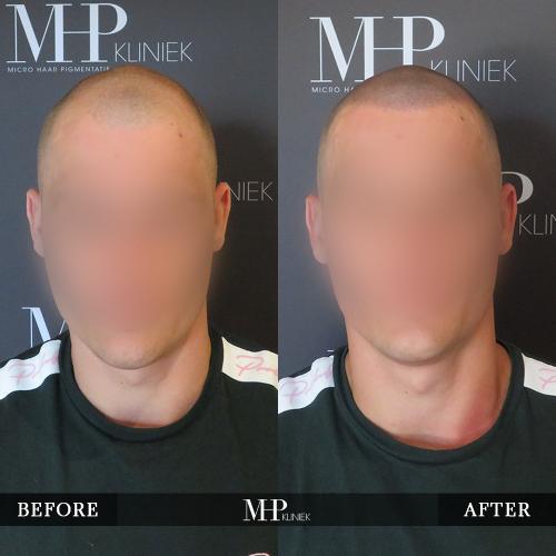 MHP-Micro-Haar-Pigmentatie-V3