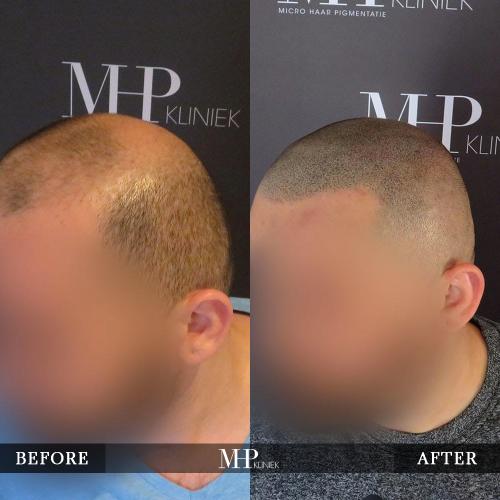 MHP-Micro-Haar-Pigmentatie-V33