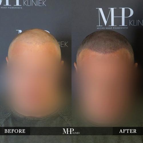 MHP-Micro-Haar-Pigmentatie-V35